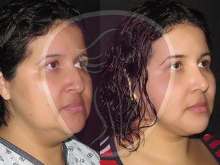 rinoplastia, liposuccion facial, afinamiento lineas esteticas, perfiloplastia, dr rafael pinto
