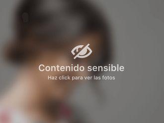 Vitiligo - 501487