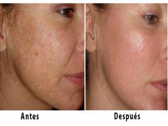 Rejuvenecimiento facial-501741