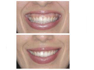 Efecto de Botox en Sonrisa Gingival