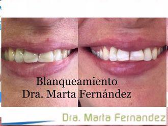Blanquear dientes-624063