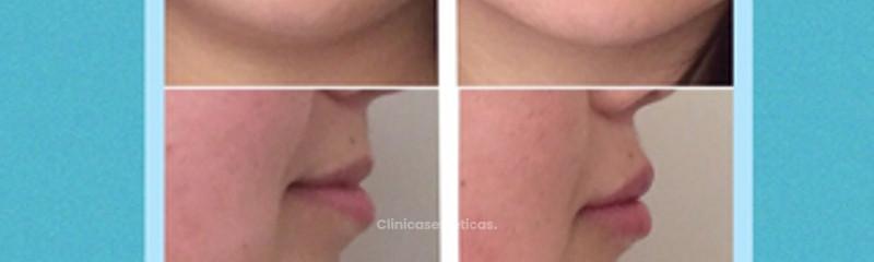 Labios con Acido Hialuronico marca Volbella