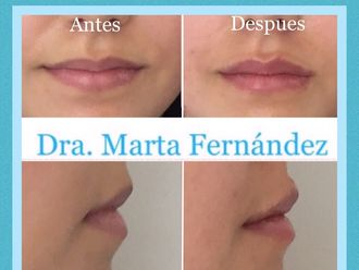 Aumento de labios - 631920