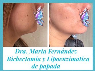 Rejuvenecimiento facial - 638862