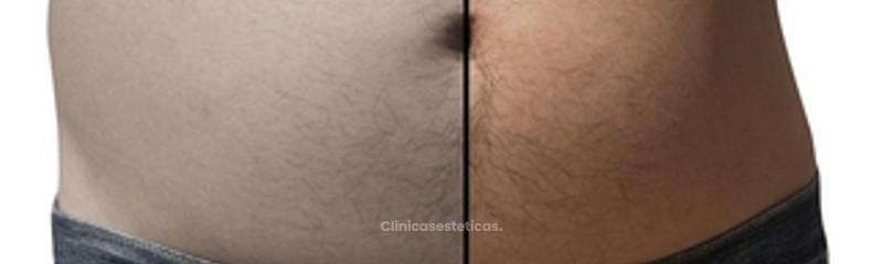 liposucción comparada