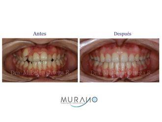Ortodoncia - 626724