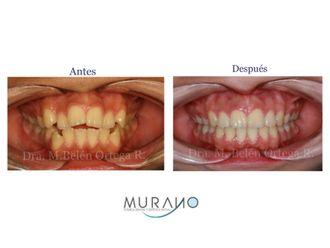 Estética dental-626725