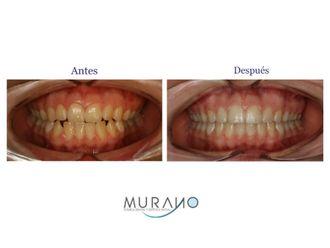 Blanquear dientes-626859