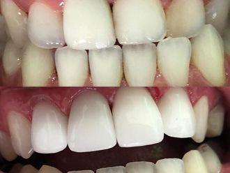 Blanquear dientes - 636022