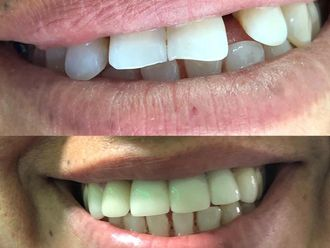 Blanquear dientes - 636023