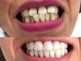 Blanquear dientes - 636029