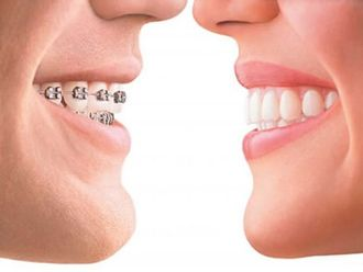 Ortodoncia - 555676