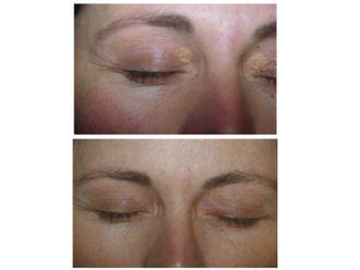 Dermatología estética-501497