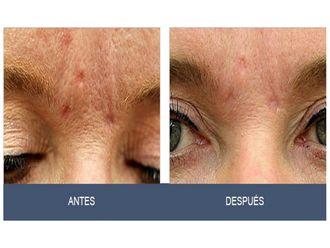 Rejuvenecimiento facial-495030