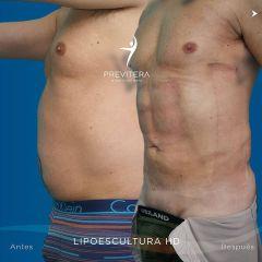 Liposucción - Dr. Antonio Previtera