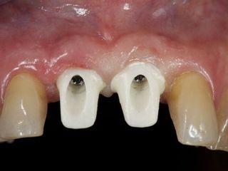 Pilares ZIrconio sobre implantes