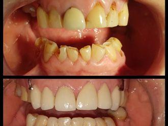Endodoncia - 621558