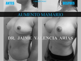Aumento mamario - 633065