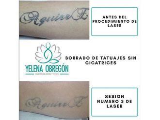 Borrar tatuajes - 641532