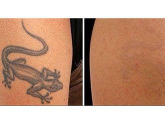 Borrar tatuajes - 641560