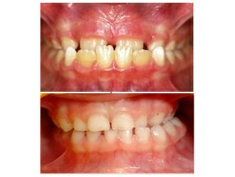 Odontopediatría - 500471