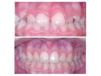 Odontopediatría - 500473