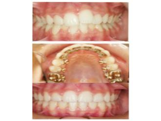 Ortodoncia-500477