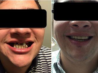 Prótesis dentales - 568093