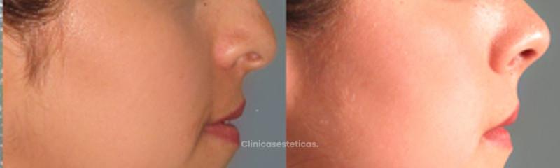 Vision Lateral Rinoplastia + Mentoplastia