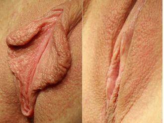 Labioplastia - 530548