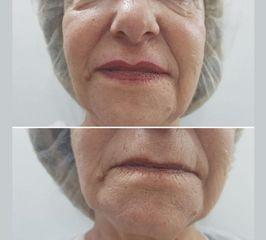 Amarna Médica Estética - Relleno de labios