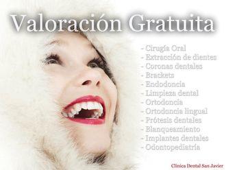 Implantes dentales - 618053