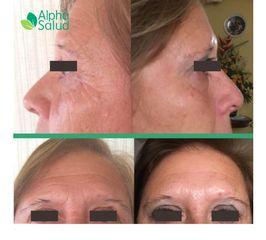 Rejuvenecimiento facial - antes y después