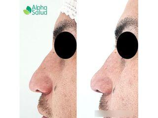 Rinomodelación - Alpha Salud