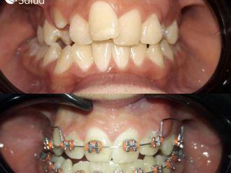 Ortodoncia-737022