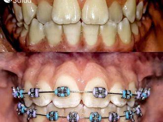 Estética dental-737023