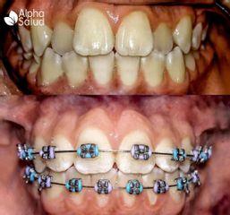 Ortodoncia - Alpha Salud