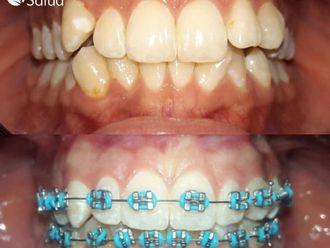 Ortodoncia-737024