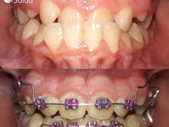 Ortodoncia-737025