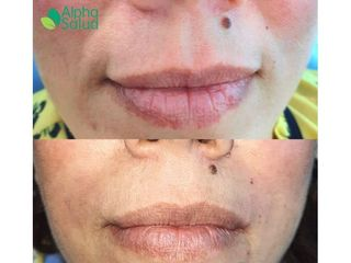 Botox - Alpha Salud