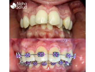 Ortodoncia-739805