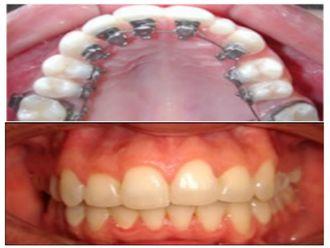 Ortodoncia-500462