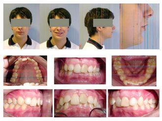 Ortodoncia-500464