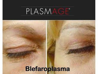 Blefaroplastia-742279