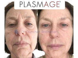 Plasma rico en plaquetas-742283