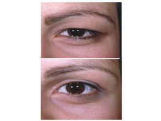 Tratamiento de bolsas en los ojos - 499981