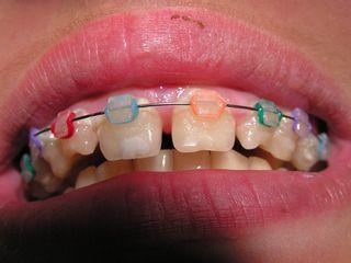 brackets transparentes y de color