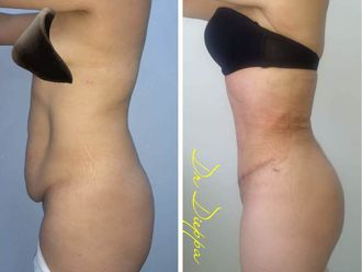 Abdominoplastia - 637097