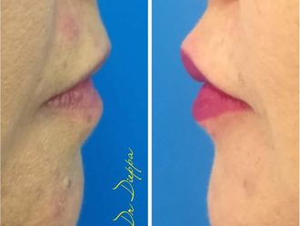 Aumento de labios - 637945