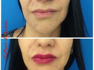 Aumento de labios - 637946
